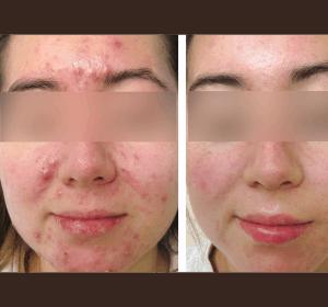 wygląd skóry trądzikowej - pierwszy miesiąc